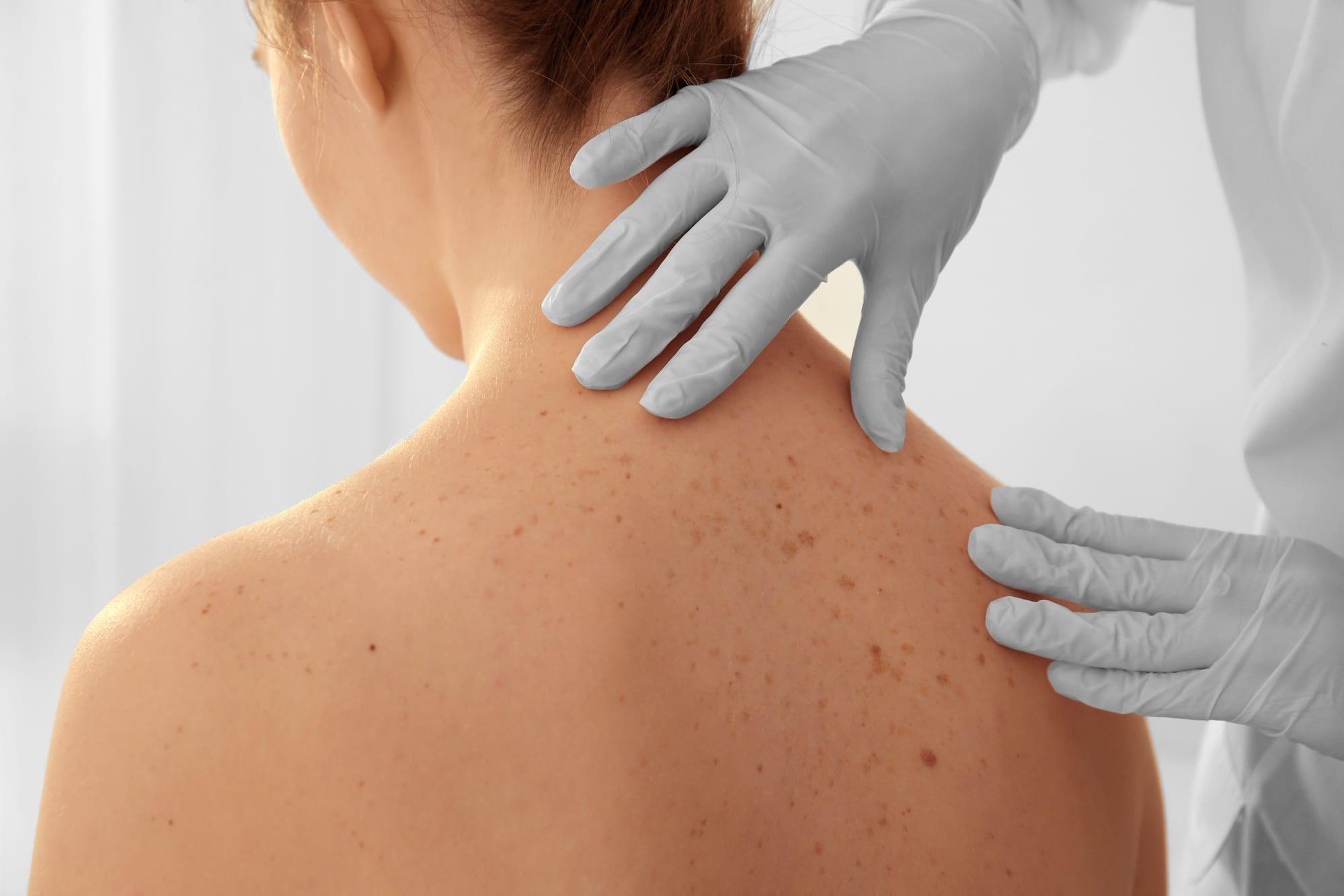 Skin-Biopsy-Advanced-Dermatology-PC
